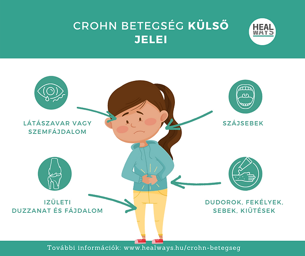 A Crohn-betegség külső jelei