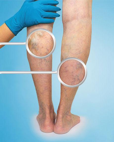 vein-clinic_blog_1100x1370-800x995.jpg