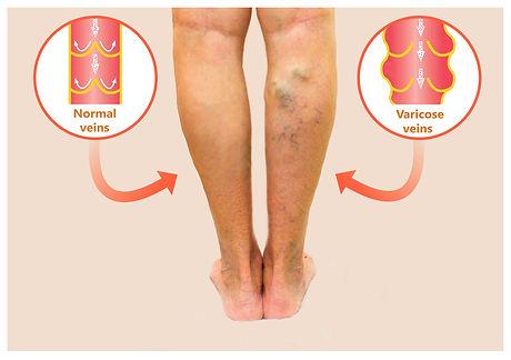 legs-with-varicose-viens.jpg