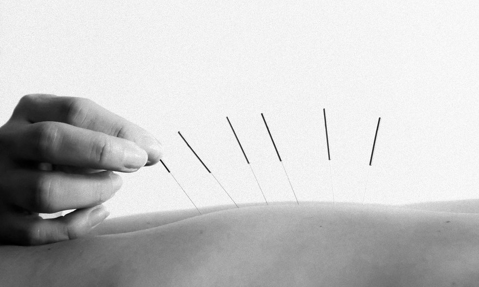 acupuncture-core_physical_care_toronto-p