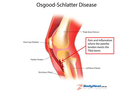 What Is Osgood-Schlatter Disease and How KINESIOLOGY can help ?