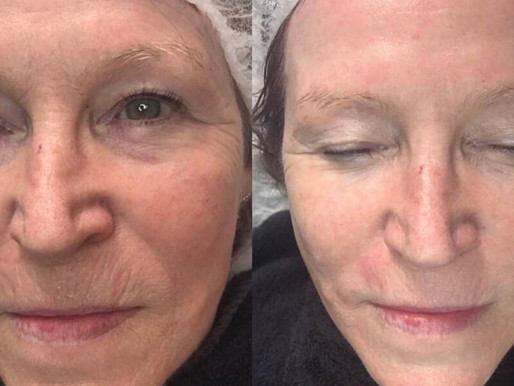 What are Glycolic Acid Peels?