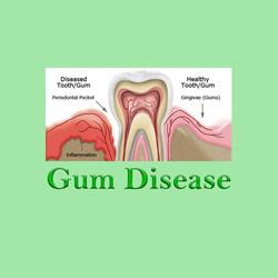 Gum Disease Huapai Dental