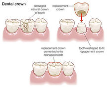 Crowns are placed to strengthen teeth that  heavily filled or Root canal treated