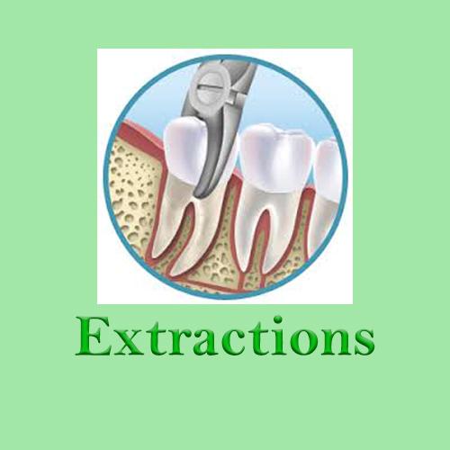 Extraction Huapai Dental