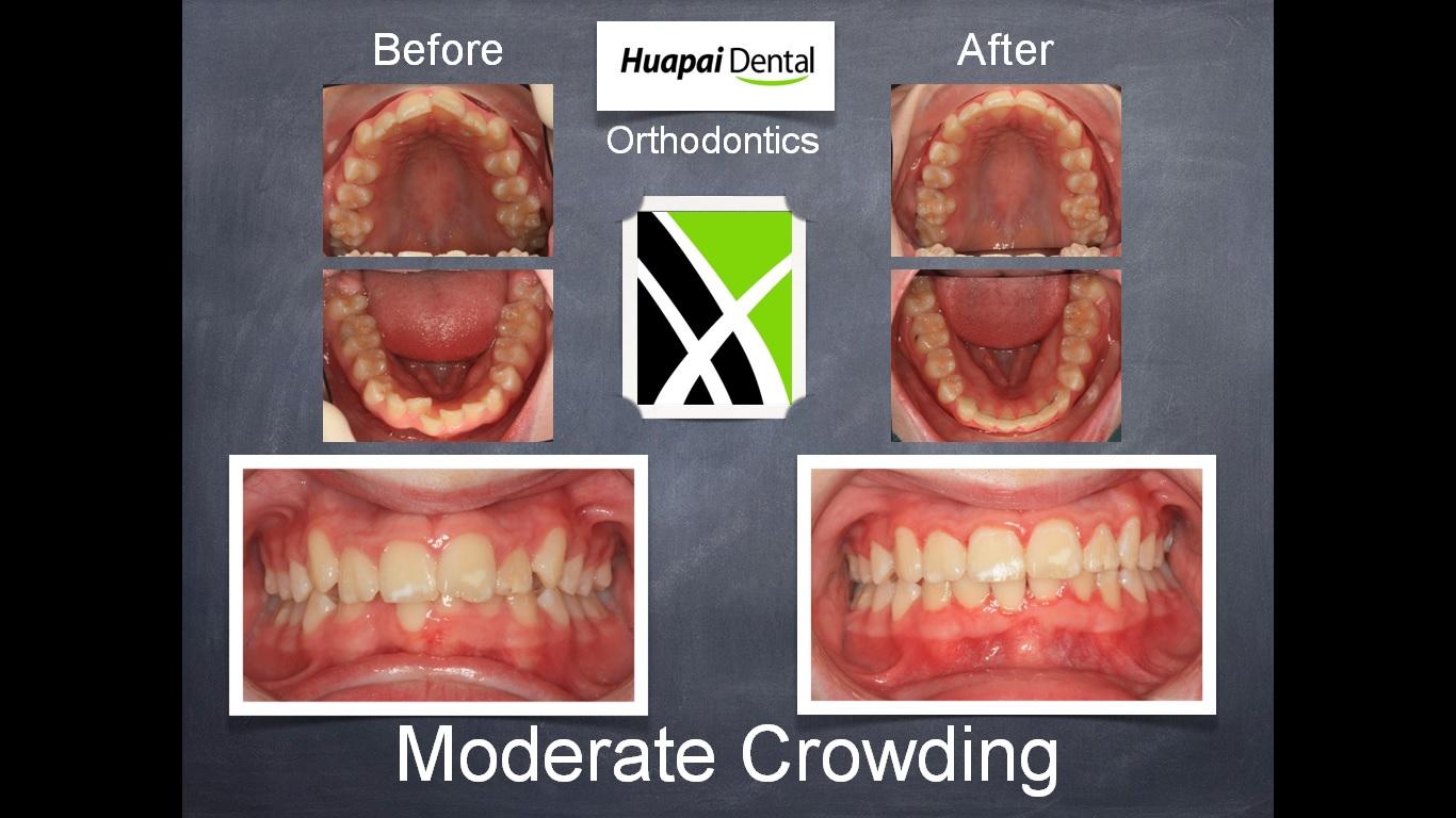 Orthodontics Kumeu Moderate Crowding