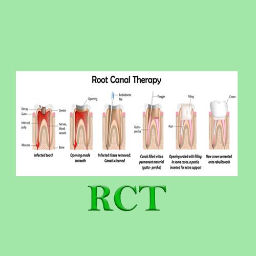 Root canal therapy Huapai Dental