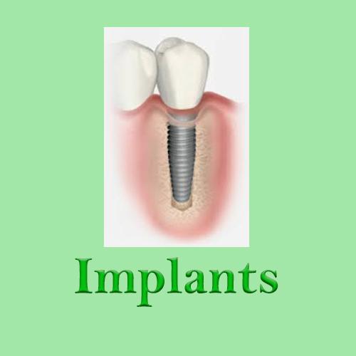 Implants Huapai Dental