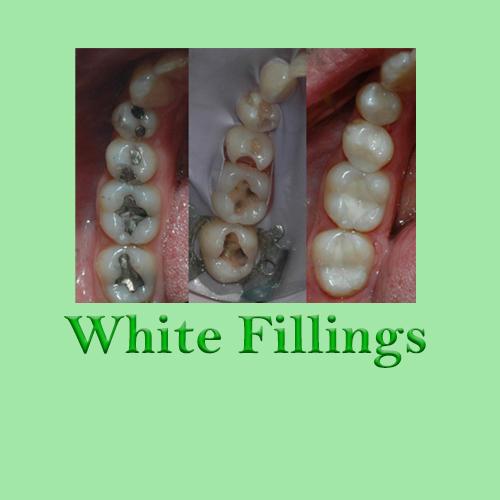 White Fillings Huapai Dental 2
