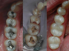 amalgam fillings replaced with white fillings under rubber dam