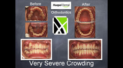 Orthodontics Kumeu Severe Crowding