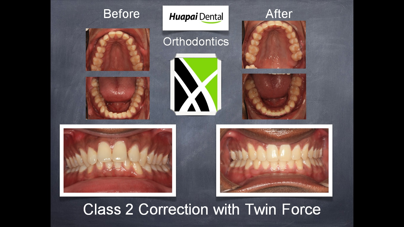 Kumeu Orthodontics