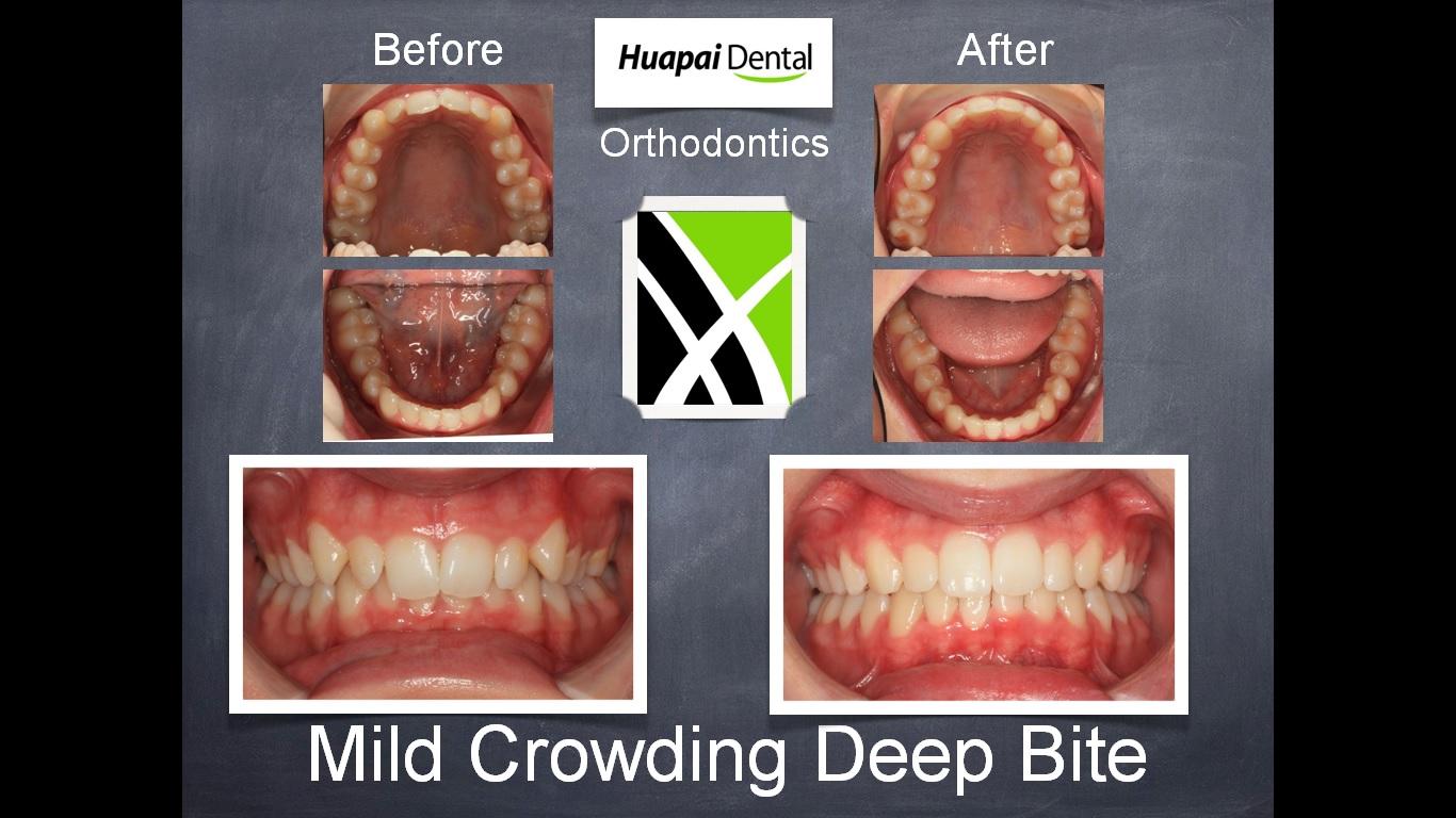 Orthodontics Kumeu Mild crowding