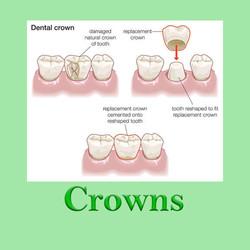 Crowns Huapai Dental