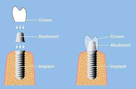 Who is An Implant Candidate?