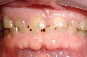 short teeth - general dentistry, exton