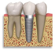 Dental Implants and Missing Teeth Replacement