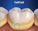 Tartar on Teeth