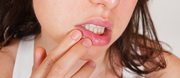 Causes of Canker Sore and  Treatment
