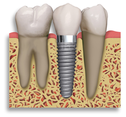 Dental Implant and Care
