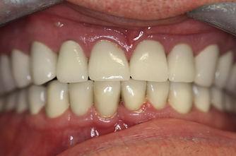 crowns, bridges, cosmetic dentistry