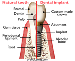 How Much You Know About Dental Implant?