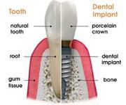 Oral Care for Dental Implants