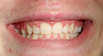 Deep Bite - Malvern Dentist