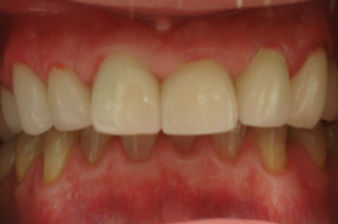 whitening teeth,dental emergency, toothache treatment