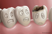 Prevent Tooth Decay