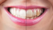 Teeth Whitening Tips for A Beautiful Smile