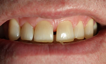 Teeth Bonding - beautiful smile, west chester