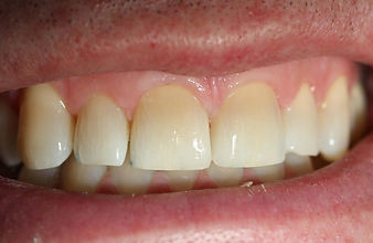 spaces between teeth - Bonding