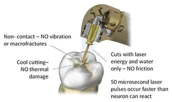 Benefits of Dental Laser