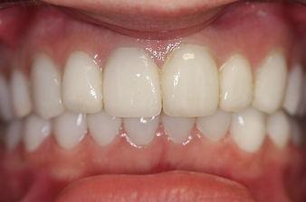 veneers, Lumineers, bleaching teeth