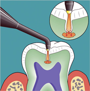 Dental Laser Assisted Caries Diagnosis