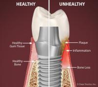 Gum Disease Can Cause Dental Implant Failure