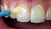 Fluoride Varnish and why the dentist keeps recommending it