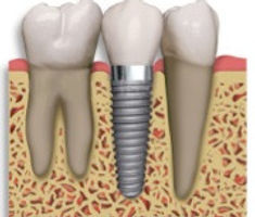 dental implant at exton dental care, west chester, downingtown