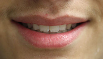 After Braces - West Chester Dentist