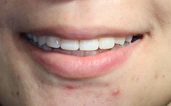 Cosmetic Dentistry - Main line dentist