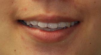 Smile Makeover - Exton Dentist