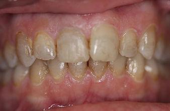 dark teeth - teeth whitening