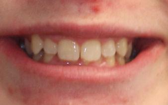 Teeth Crowding - Downingtown Dentist