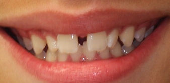 Before Braces -Exton Dental Care