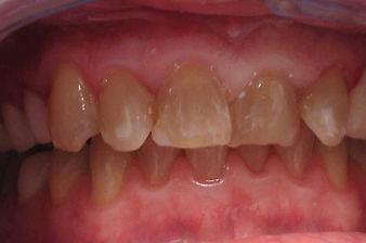dark needs teeth whitening - philadelphia dentist