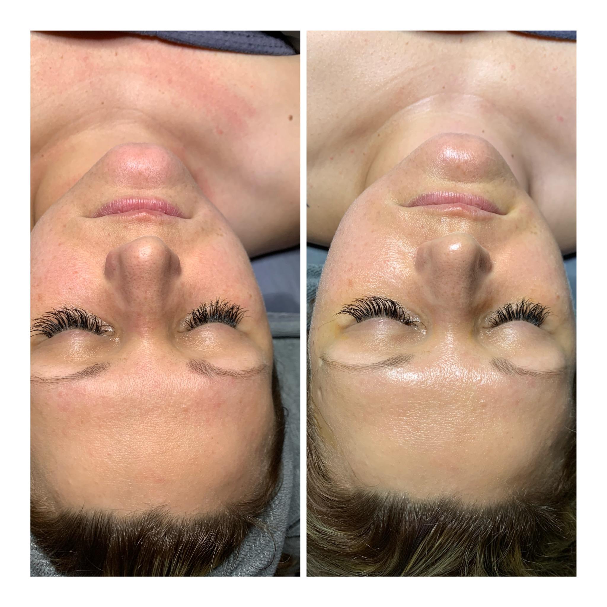 Nano Facial Results