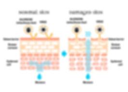 skin barrier image for sensitive skin.jp