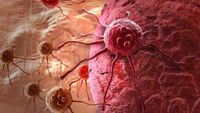 Entenda como é o tratamento do câncer de cólon
