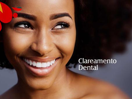 Clareamento Dental: O que você precisa saber para ter um sorriso branquinho